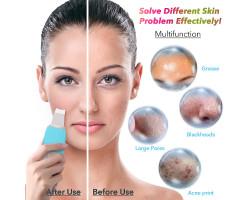 Скрабер для ультразвуковой чистки лица HailiCare JHF603